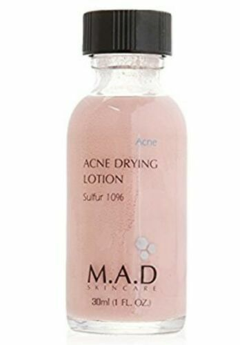 acne free drying lotion review